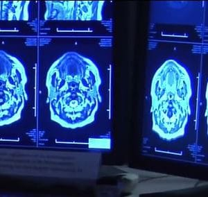 Brain a mystery discovered